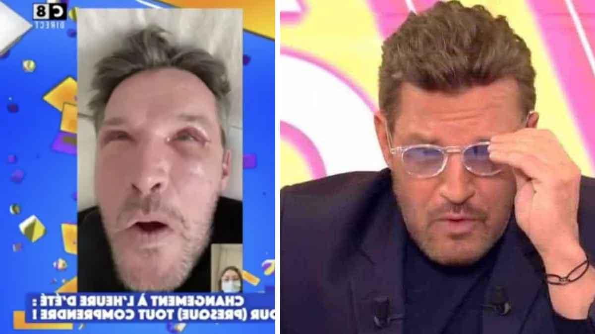 benjamin-castaldi-est-meconnaissable-apres-son-operation-des-yeux-il-devoile-avec-horreur-son-visage-bouffi