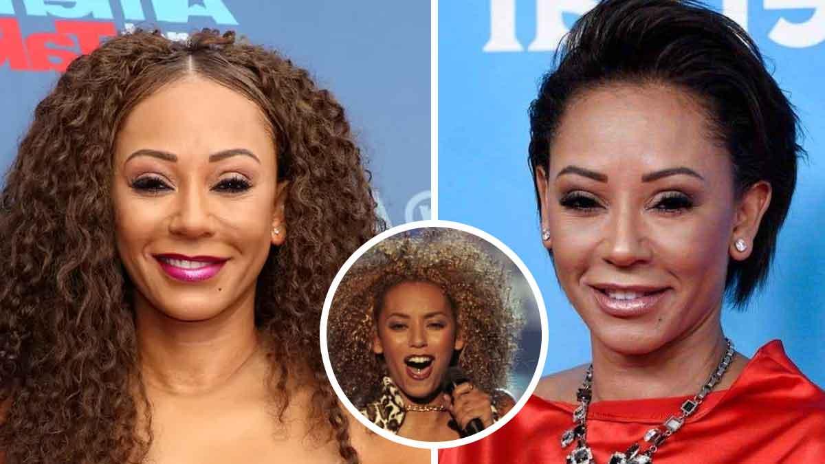 melanie-brown-la-chanteuse-de-spice-girls-partage-une-video-tres-choquante-avec-le-visage-completement-defigure
